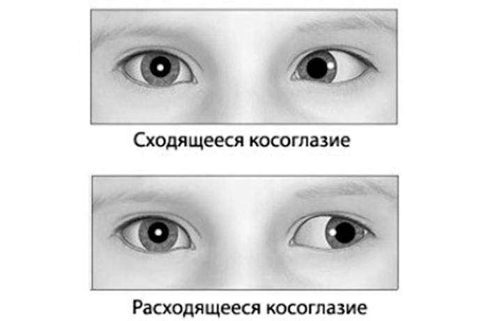 Исправление косоглазия у детей. методы лечения и упражнения для глаз — глаза эксперт