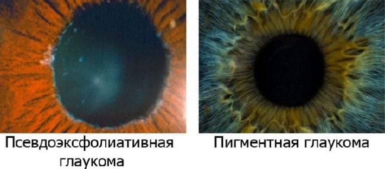 Закрытоугольная глаукома. причины, симптомы, диагностика, лечение и профилактика заболевания.