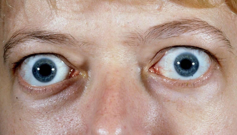 Размер глазного яблока человека - от чего он зависит