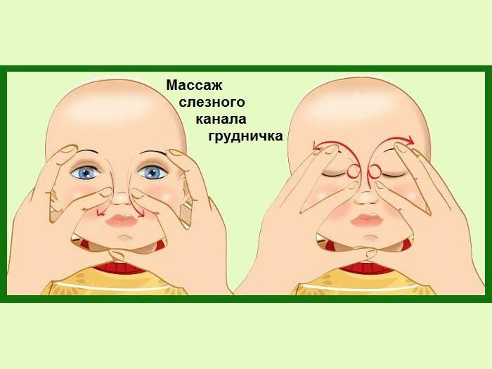 Правильный массаж глаз при дакриоцистите у новорожденных детей