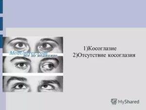 Как исправить косоглазие у взрослых: методы лечения oculistic.ru как исправить косоглазие у взрослых: методы лечения