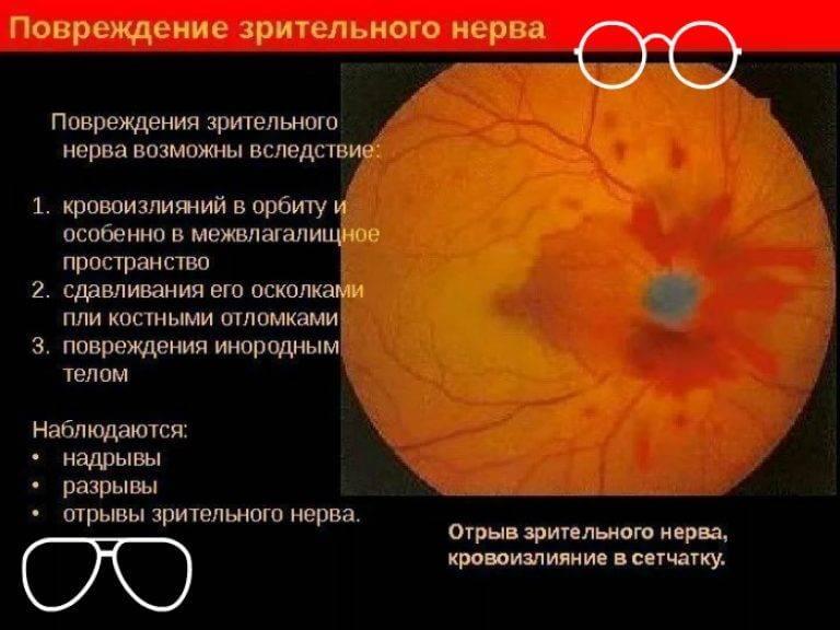 Как проводится диагностика лечение атрофии зрительного нерва в израиле?