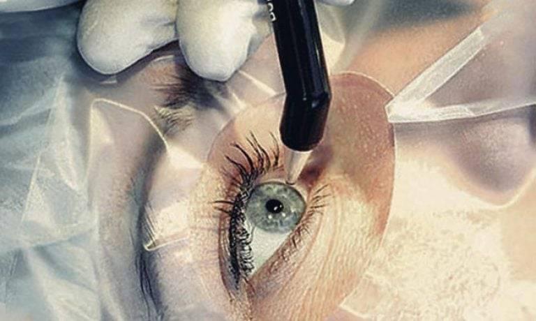 Хирургическое лечение близорукости: виды операции и возможные осложнения