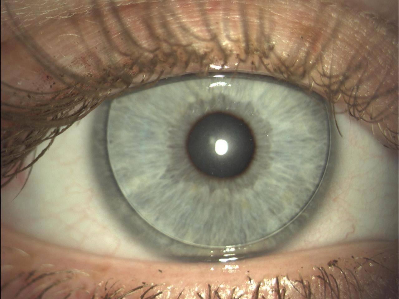 Корнеосклеральные линзы для лечения патологий глаз