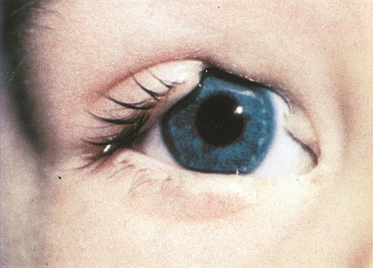 Колобома радужки глаза, причины и лечение, фото, операция