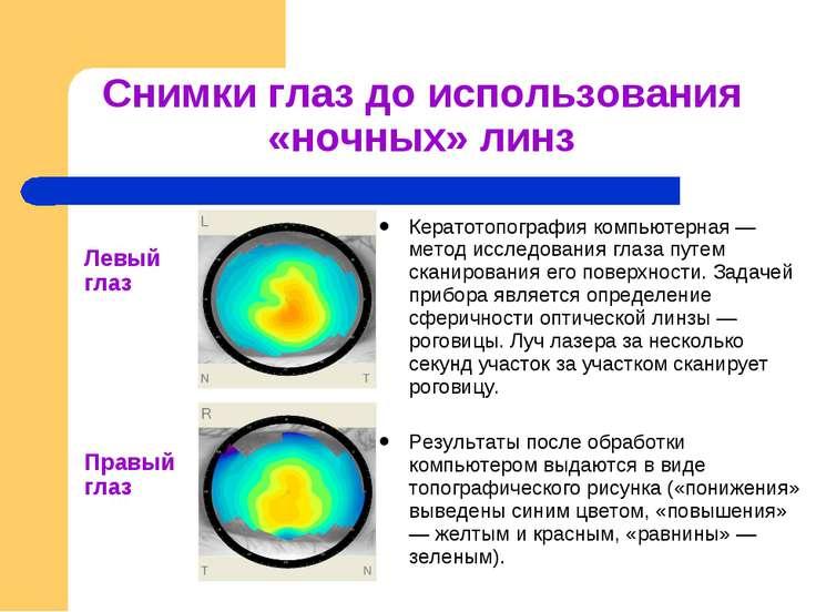 Кератотопография роговицы глаза