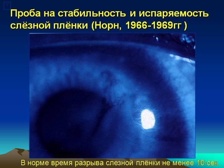 Строение слезной пленки. слезопродуцирующий аппарат глаза.