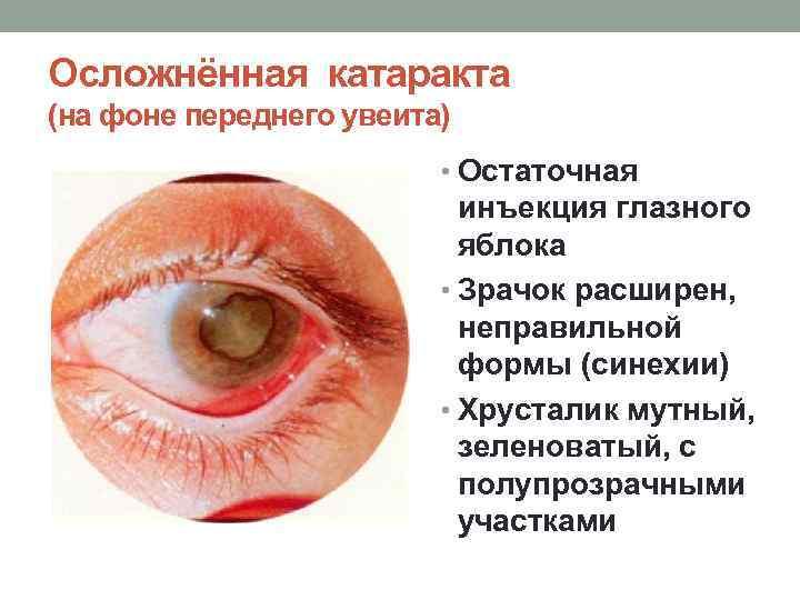 Патологии хрусталика глаза
