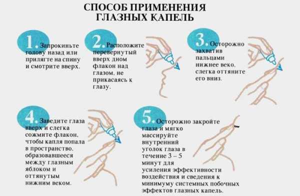 Как правильно закапывать капли в глаза - пошаговая инструкция
