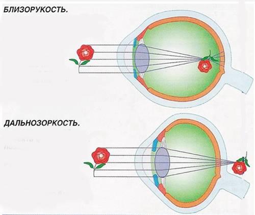 Миопия и гиперметропия – что такое близорукость и дальнозоркость простыми словами