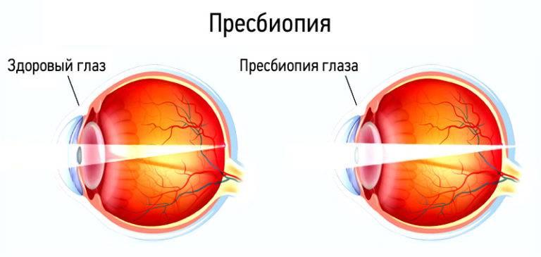 Пресбиопия - что это такое и как лечить у взрослых, код по мкб-10, пресбиопические очки для глаз при заболевании