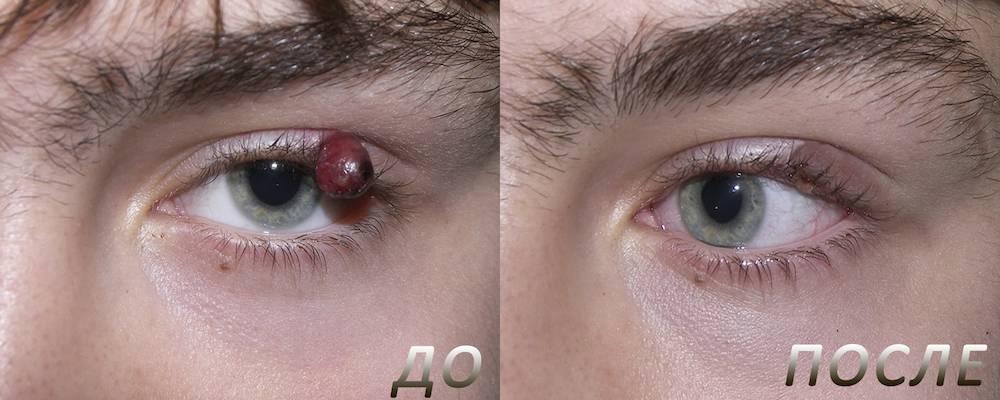 Удаление халязиона на глазу: виды и особенности операций