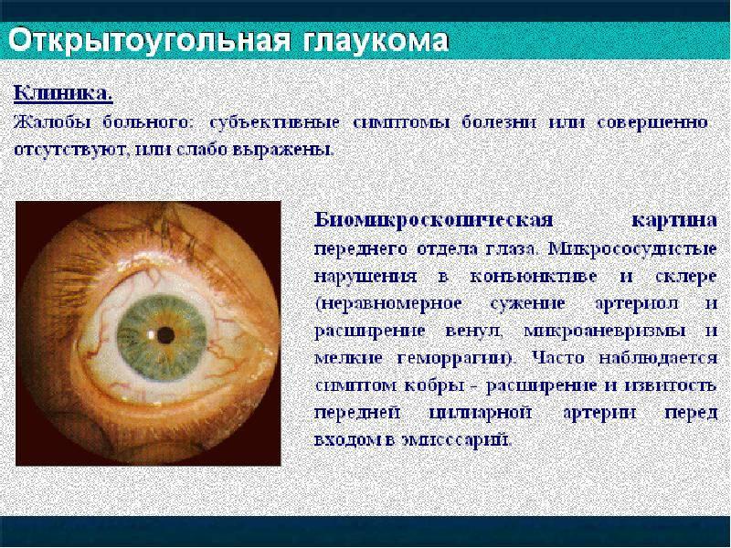 Признаки глаукомы. что такое глаукома, лечение — глаза эксперт