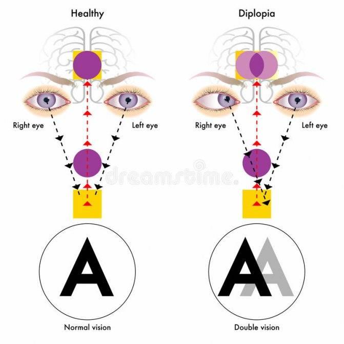 Чем лечить диплопию