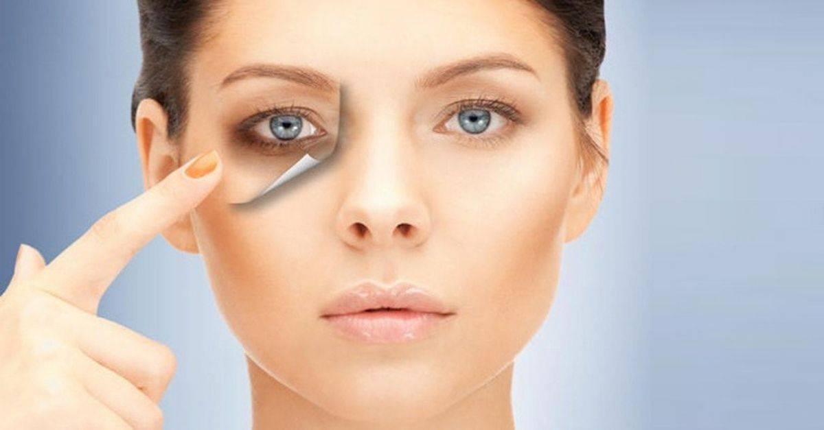 Круги под глазами – причины болезни у женщин, лечение