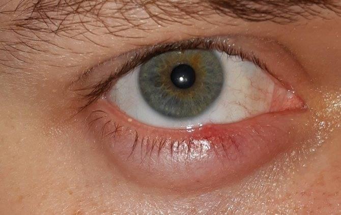 Сколько времени проходит ячмень на глазу
