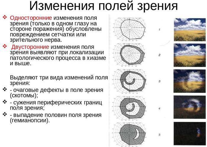 Туннельное зрение (боковое): симптомы и лечение, тренировка периферического зрения, как развить, пропало на одном глазу