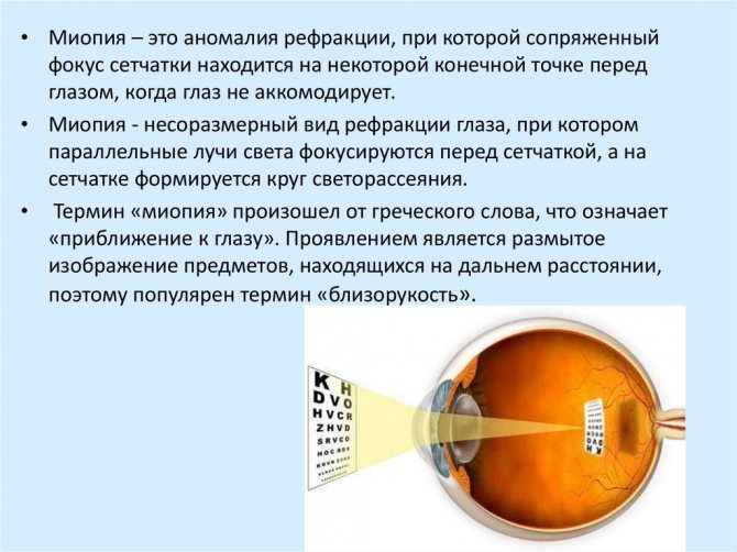 Миопия 1, 2 и 3 степени при беременности