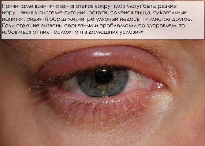 Почему появляются отеки над глазами?