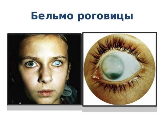 Заболевания роговицы