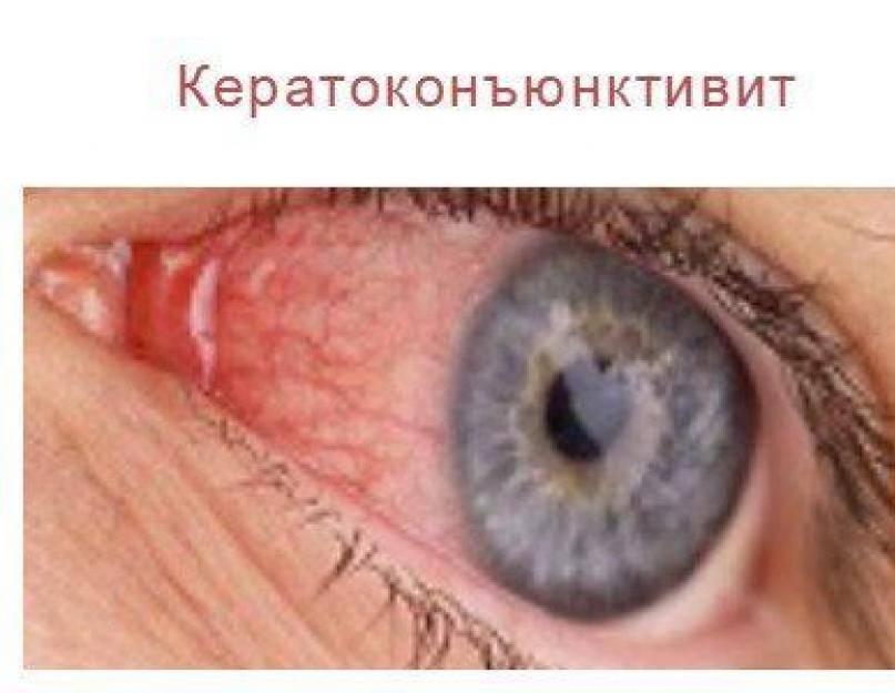 Аденовирусный кератоконъюнктивит: что это такое, причины, симптомы, диагностика и лечение у взрослых