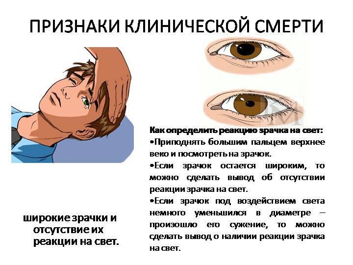 Нистагм глазного яблока: что это, причины возникновения спонтанного, врожденного, роторного, горизонтального, вестибулярного, вертикального, лечение