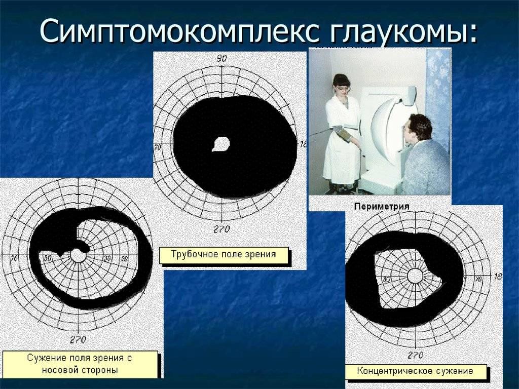 Компьютерная кератометрия: расшифровка, что это такое, нормы офтальмометрии