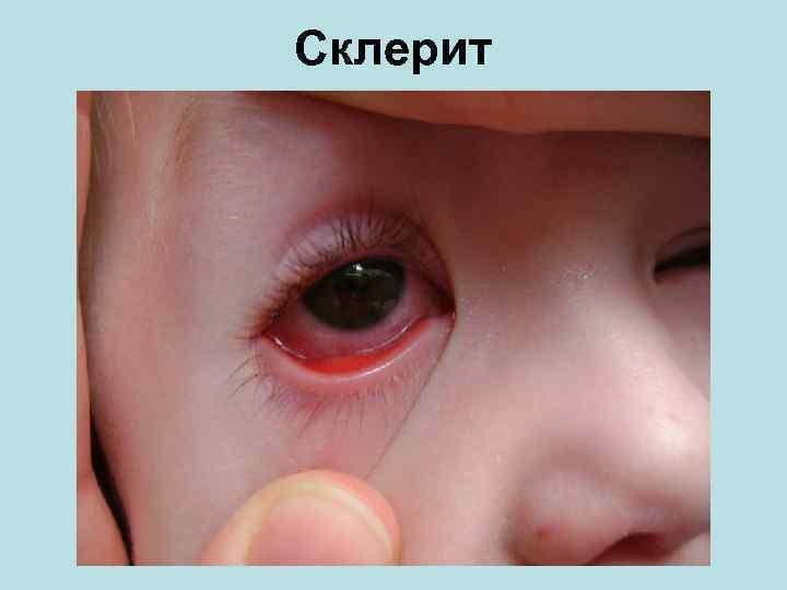 Особенности возникновения, прогрессирования и устранения склерита глаз.