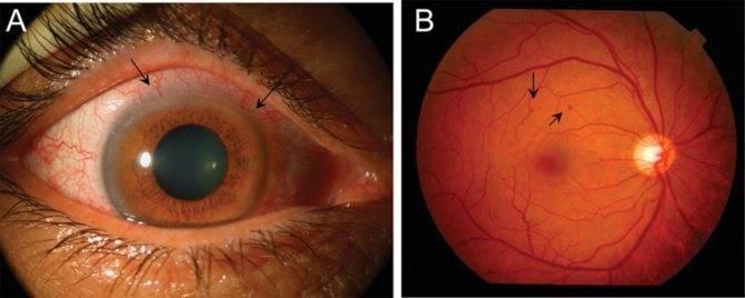 Причины возникновения и эффективные методы лечения тромбоза глаза