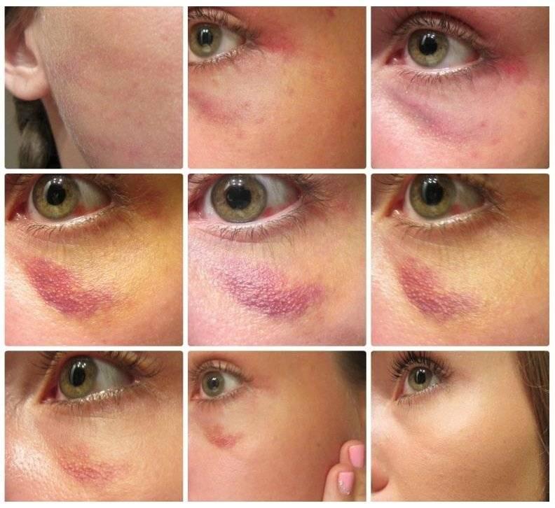 Как быстро убрать синяк под глазом, лечение гематомы от удара и опухоли в домашних условиях за один день, маскировка ушиба