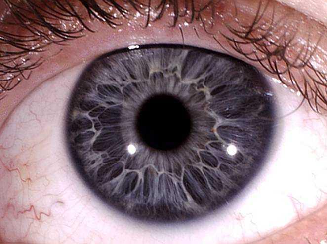 Определяем болезнь по радужке глаза
