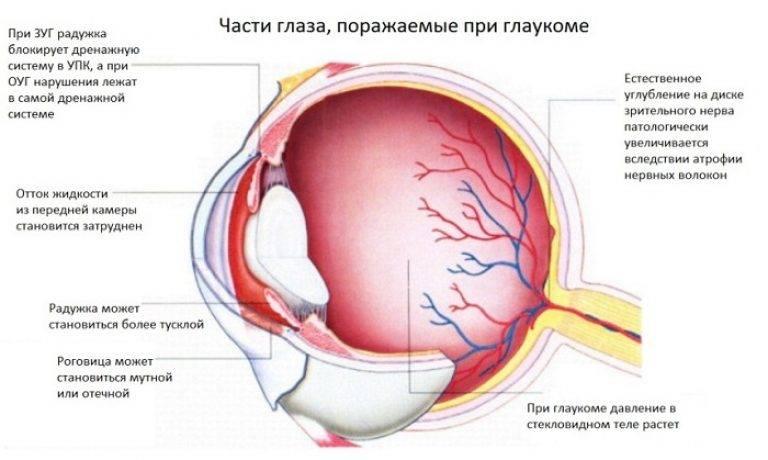 Противопоказания при глаукоме: советы для здорового образа жизни