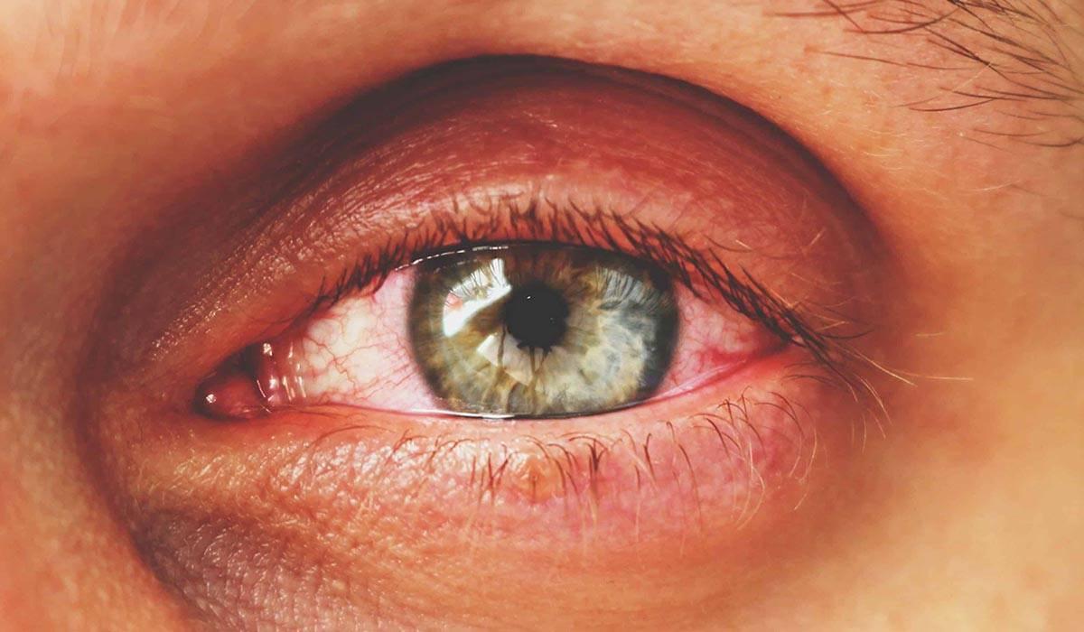 Трахома глаз, лечение и симптомы - умный доктор