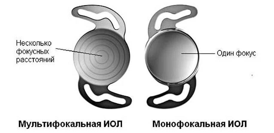 Имплантация дополнительной асферической, торической, мультифокальной иол rayner с рефракционной целью | «clean view»