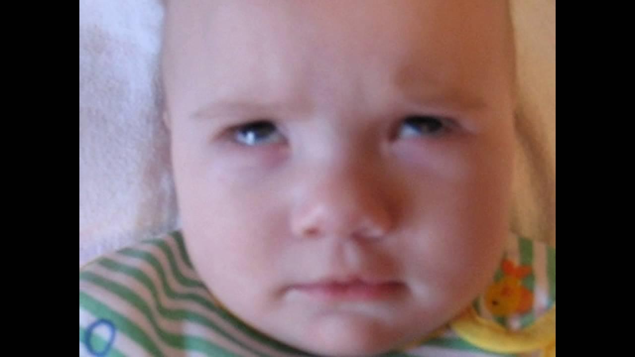 """Ребенок закатывает глаза вверх, вниз, в сторону: причины и лечение -""""здоровое око"""""""