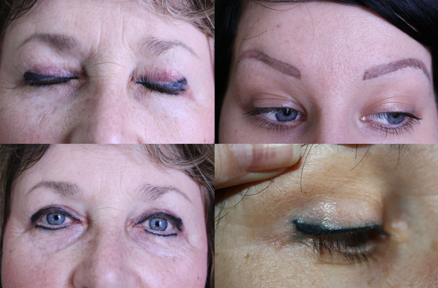 Последствия татуажа бровей через несколько лет после процедуры, в старости, фото, видео