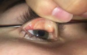 Ощущение мусора в глазах   ocularhelp