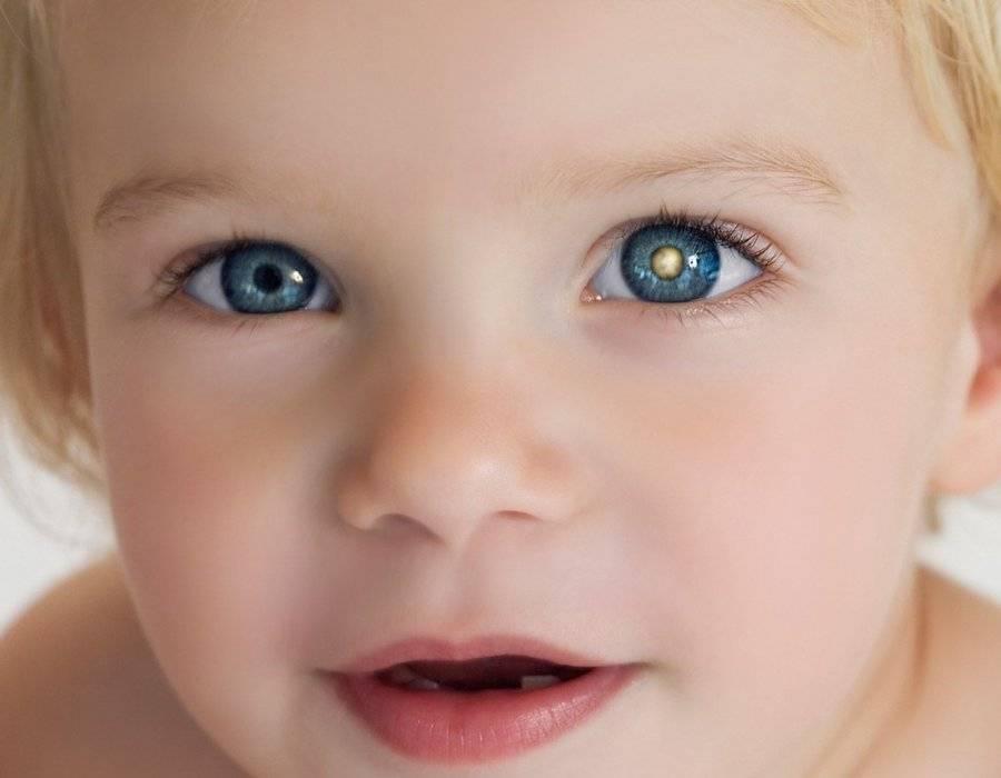 Ретинобластома у детей: что это, первые признаки, симптомы, стадии, фото