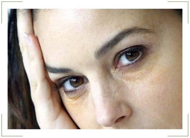 Под глазами желтые пятна, круги: причины появления (на веках, вокруг глаз), симптомы, лечение, препараты, фото