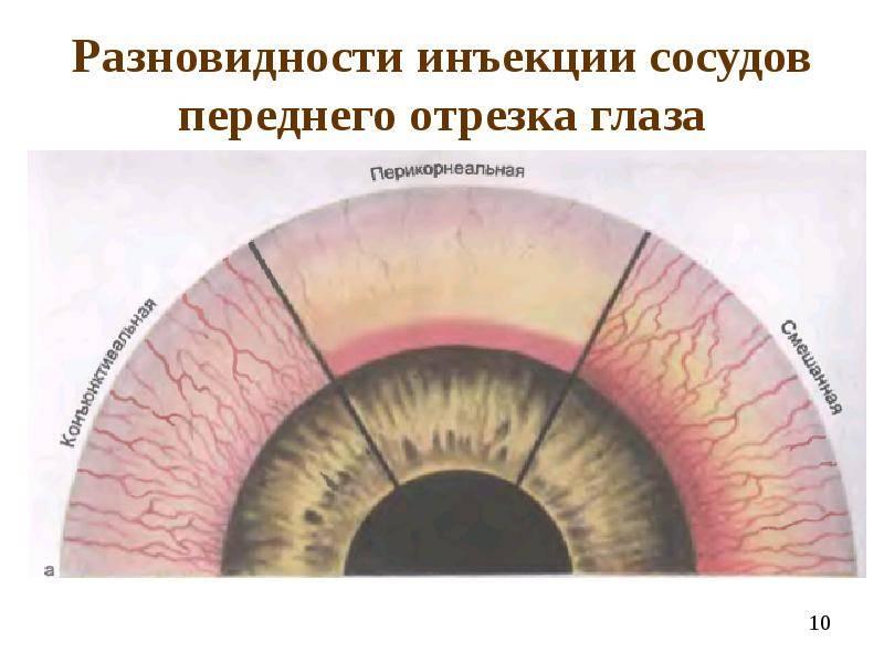 Инъецированность склер: причины, симптомы, лечение oculistic.ru инъецированность склер: причины, симптомы, лечение