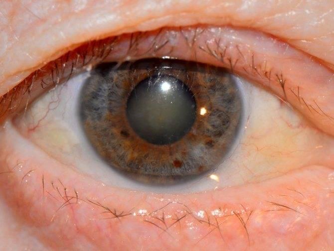 Катаракта глаза - что это такое и как лечат