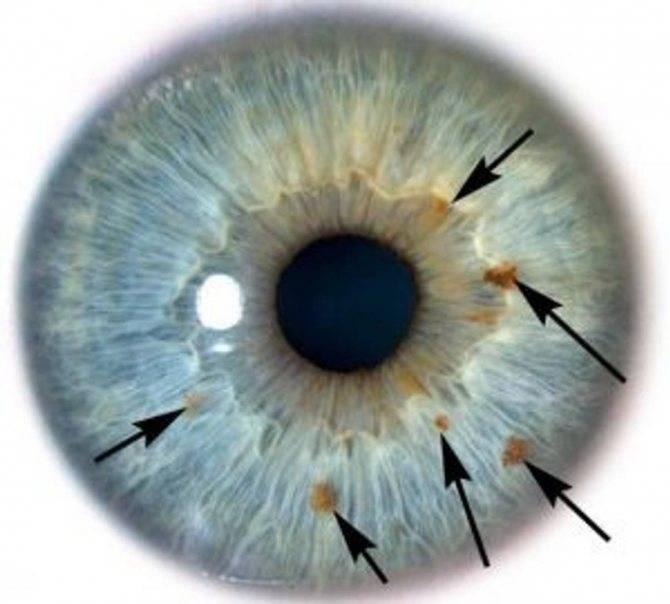 Красные пятна перед глазами - что это, причины и лечение
