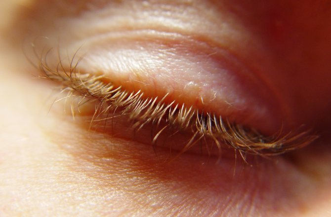 Как передается ячмень на глазу: причины, симптомы, лечение и профилактика — глаза эксперт
