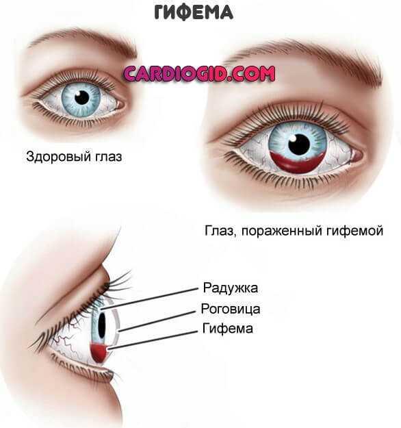 Вылезли красные сосуды в глазах? 5 способов решения проблемы