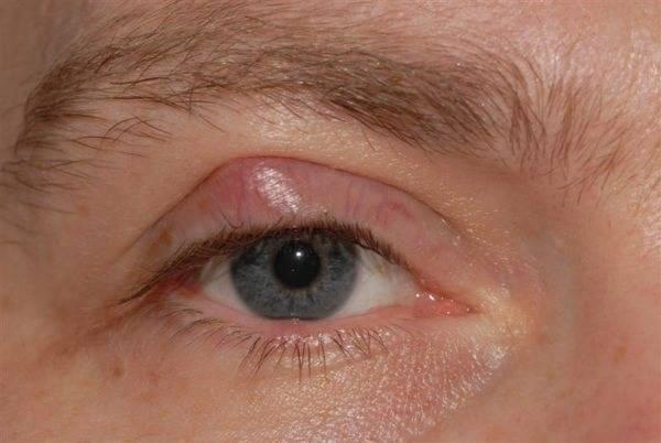 Халязион верхнего и нижнего века: фото глазной болезни, причины возникновения, симптомы и удаление