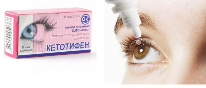 Кетотифен капли глазные инструкция цена отзывы - медицинский справочник medana-st.ru