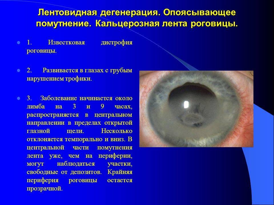 Дистрофия роговицы глаза: что это такое, лечение, виды дегенерации (эндотелиальная, лентовидная)