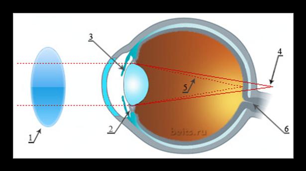 """Подбор очков при близорукости - """"здоровое око"""""""