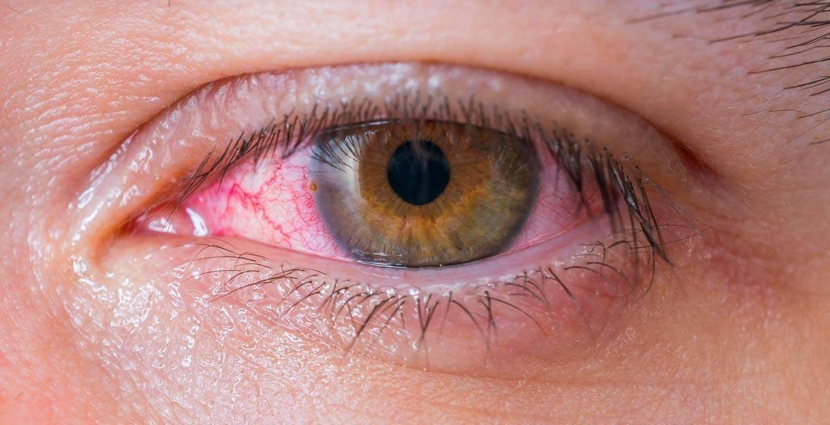 Болят глаза от линз: причины, что делать если после ношения оптики появляются неприятные ощущения