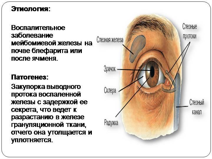 Мейбомиевы железы: какие выполняют функции